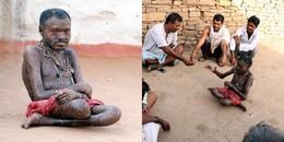 Cứ 10 ngày lại lột da một lần, người đàn ông này được cả làng mệnh danh là 'người rắn'