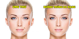 Những thay đổi bất thường trên gương mặt cảnh báo cơ thể bạn đang 'kêu cứu'