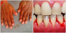 Móng tay thô ráp, chảy máu chân răng,... hãy cẩn thận vì bạn có thể đang mắc bệnh nguy hiểm