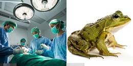 Tin bài thuốc cổ truyền ăn 3 con ếch sống, người phụ nữ vô tình 'nuôi' sán dài gần 13cm trong cơ thể