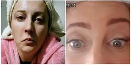 Người phụ nữ không thể ăn, uống hay nói chuyện chỉ vì tiêm botox với khao khát làm đẹp