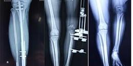 Ca phẫu thuật kéo dài chân kỷ lục ở Việt Nam