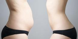 Sốc: Khoa học chứng minh người gầy mà bị mỡ bụng có thể dễ gây nên cái chết sớm