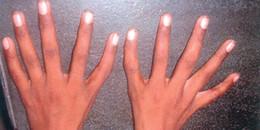 Kì lạ hội chứng 'tay người ngoài hành tinh' khiến ngón cái... biến thành ngón trỏ