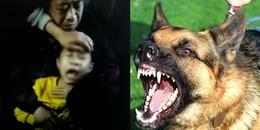 Clip: Bé trai liên tục sủa sau khi bị chó dại cắn khiến gia đình hoang mang