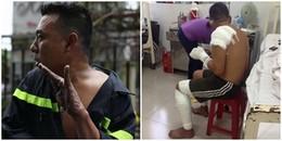 Chuyện về anh lính cứu hoả bị tuột hết da tay và sự hy sinh thầm lặng suốt 15 năm cứu người