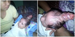 Em bé được gọi là 'hậu duệ' của kỳ lân, sinh ra với chiếc sừng mọc giữa đỉnh đầu