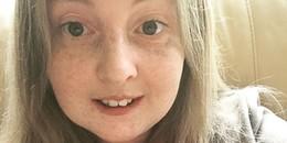 18 tuổi nhưng chưa một lần 'đến kì', cô gái trẻ đau đớn khi biết mình không hề có âm đạo