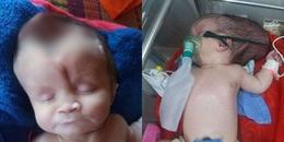 Bé 2 tháng tuổi sinh ra bị mất hộp sọ và câu chuyện cứu chữa con của bố mẹ lấy nước mắt triệu người
