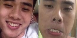Khoe răng đẹp đều như bắp, dân mạng Việt khiến MXH 'té ngửa' khi lộ hàm dưới 'mạnh ai nấy mọc'