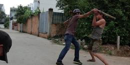 Sài Gòn: Vì quen chung một người phụ nữ, hai người đàn ông chém nhau đến suýt lìa 1 cánh tay