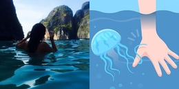 Tuyệt chiêuxử lý vết sứa đốt khi đi biển nhanh như chuyên gia