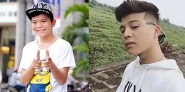 yan.vn - tin sao, ngôi sao - Quang Anh The Voice Kids tự tin khoe cận cảnh gương mặt sau phẫu thuật thẩm mỹ
