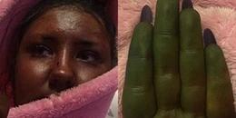 """Cô gái trẻ bỗng biến thành """"người khổng lồ xanh Hulk"""" chỉ vì sử dụng sản phẩm làm đẹp này"""