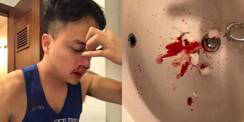 yan.vn - tin sao, ngôi sao - Cao Thái Sơn bị chảy máu mũi đến mức nhập viện khiến fan lo lắng