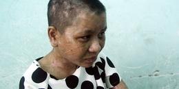 Người tra tấn dã man cô gái làm thuê chịu mức án nào?
