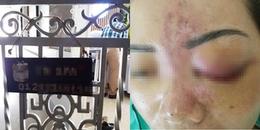 Người phụ nữ mù mắt sau khi tiêm filler: Cơ sở thẩm mỹ hoạt động không giấy phép trong chung cư