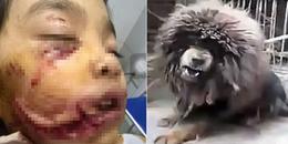 Chó Ngao Tây Tạng và những lần tấn công con người vô cùng khiếp đảm