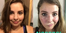Không rửa mặt suốt 1 tuần, cô nàng bất ngờ nhận được sự thay đổi về da