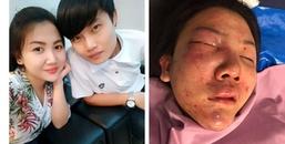 Sau 7 năm yêu nhau, cô gái xinh đẹp bị bạn trai đánh đập dã man nơi công cộng khiến CĐM phẫn nộ