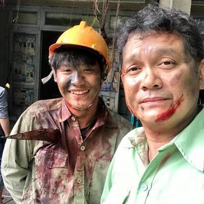 Lộ ảnh bầm dập của NSƯT Hữu Châu trong
