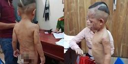 Khởi tố, bắt tạm giam cha dượng đánh dã man bé trai 3 tuổi