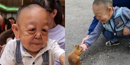 Dân mạng hốt hoảng trước cậu bé 6 tuổi mang gương mặt nhăn nheo của ông lão 60 tuổi