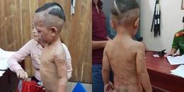 Công an kết luận vụ cha dượng bạo hành con trai 3 tuổi gây phẫn nộ dư luận