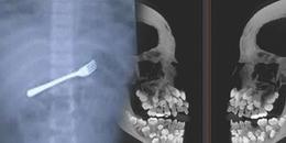 Rùng mình xem những bức ảnh chụp X-quang vô cùng đáng sợ