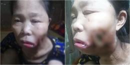 Người phụ nữ không dám soi gương khi khuôn mặt biến thành 'quái nhân' vì căn bệnh lạ đục khoét mặt