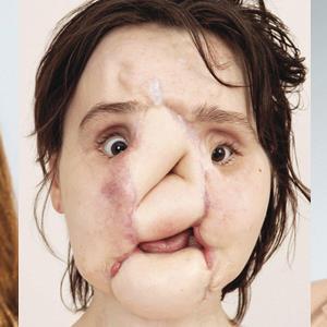 Cô gái xinh đẹp tự sát bất thành, gương mặt bị hủy hoại và phải ráp mặt người khác suốt đời