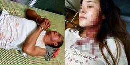 Thảm sát kinh hoàng khiến 3 người trong 1 gia đình tử vong, nhiều người bị thương nặng