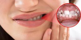 Nghiến răng khi ngủ: Đây là một loại bệnh để lại hậu quả khôn lường, đừng xem thường!