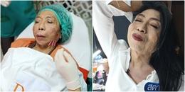 'Thục nữ nổi nhất MXH Thái Lan' nâng cấp nhan sắc nhưng sao mặt vẫn 'rỗ như cái rổ' thế nhỉ?