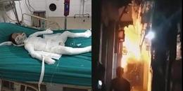 Hà Nội: Chồng tẩm xăng đốt nhà giữa đêm khiến vợ và con trai bỏng nặng