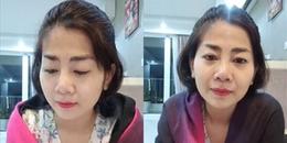Mai Phương bắt đầu hứng chịu những tác dụng phụ của thuốc trị ung thư