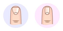 Đọc vị tính cách cực chính xác qua hình dáng móng tay, thử ngay kẻo nhìn người sai lại hối hận!