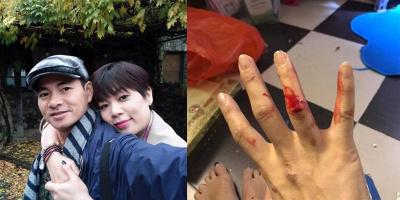 """Xôn xao thông tin vợ Xuân Bắc bị chồng đánh be bét máu sau khi """"đấu khẩu"""" với Kim Oanh"""