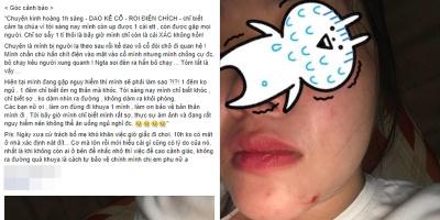 Góc cảnh báo: Cô gái trẻ bị kẻ lạ uy hiếp bằng dao, chích roi điện, đòi chở đi quan hệ tại Nha Trang