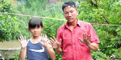 """Kỳ lạ gia đình """"dị biệt"""" cả 3 thế hệ đều có tới 24 ngón tay, chân"""