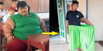 """Cuộc sống hiện tại của cậu bé """"nặng nhất thế giới"""" sau khi giảm 110kg"""