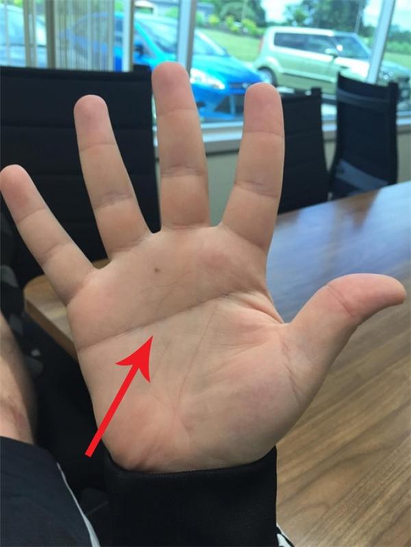 """""""Bàn tay chữ nhất"""" chỉ xuất hiện ở 1,5% dân số thế giới."""