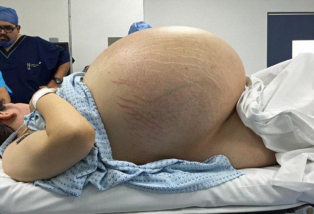 Cô gái người Mexico này mặc dù đã ăn kiêng tích cực nhưng vẫn tăng cân nhanh chóng và bụng cô giống như đang mang bầu.
