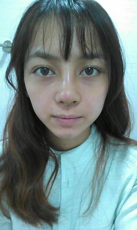 Sau khi phẫu thuật xong, chiếc mũi của cô đã không được đẹp như ý muốn nên đã phải phẫu thuật lần 2