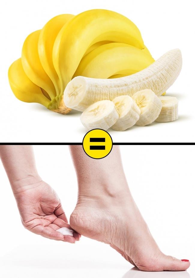 MẸO: Loại bỏ hoàn toàn vết nứt nẻ phần gót chân bằng các nguyên liệu có sẵn tại nhà