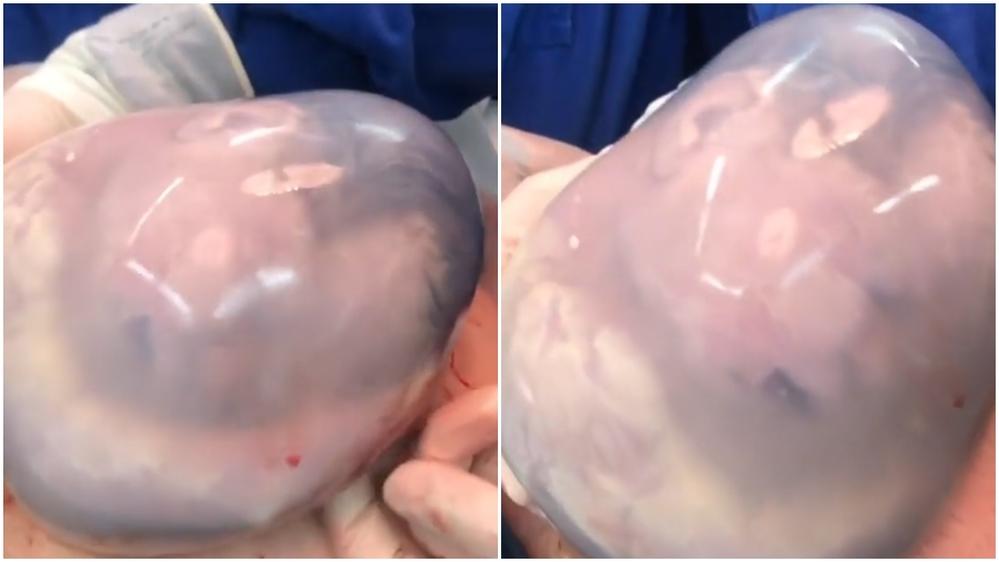 Em bé chào đời còn nằm nguyên trong túi ối.