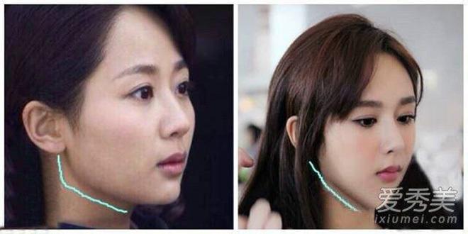 Có khá nhiều dân mạng đưabằng chứng cho rằng cô từng phẫu thuật thẩm mỹ. (Ảnh: Weibo).