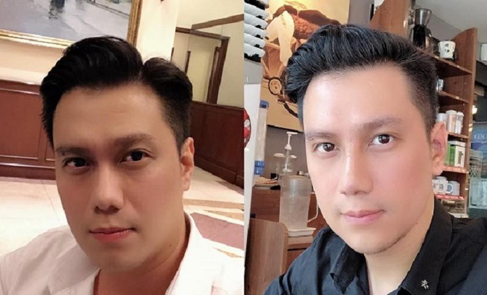 Việt Anh gây sốc khi dao kéo ngoại hình dù đã rất đẹp trai (Ảnh: Facebook)