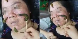 Không thể tin được, người phụ nữ này đang để 4 con đỉa xanh uốn éo trên mặt để... trị mụn