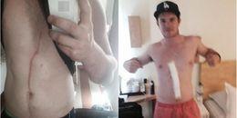 Vết đỏ trên bụng cứ thế dài ra, anh chàng đi kiểm tra thì biết được nguyên nhân thực sự đáng sợ